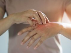 How to prevent dry skin from constant hand-washing